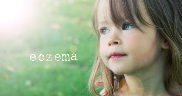 Eczema information and treatments