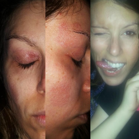 Facial excema pictures