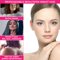 Vivefly Healthcare Blackhead Remover goud Mee-eters Puisjes Aurelia - Vivefly Healthcare
