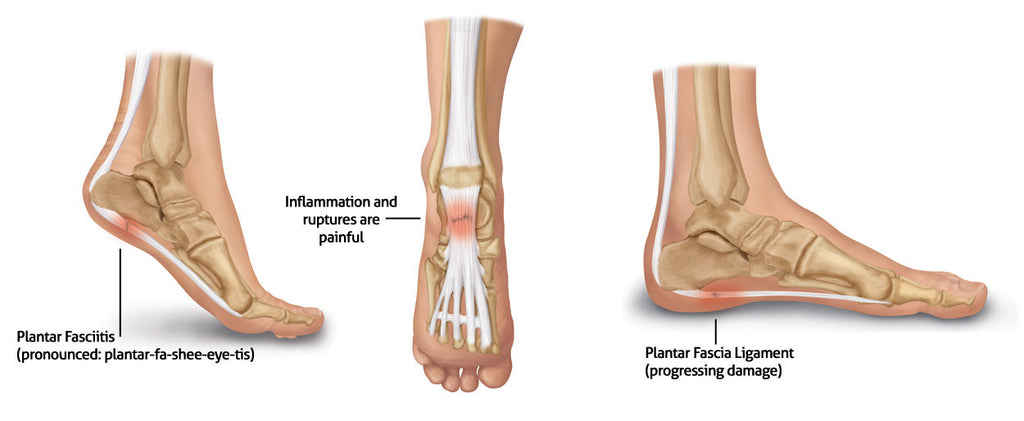 f00cffcff2 Having plantar fasciitis doesn't mean that you should slow down. In fact,  an exercise that stretches your plantar fascia and you calf muscles are  helpful in ...