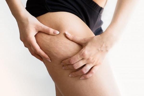 Cellulite All You Need To Know