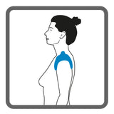 Illustration of a female upper body, left shoulder, with shading to show the placement of Dermisplus Prevent sacrum pad used on the shoulder.