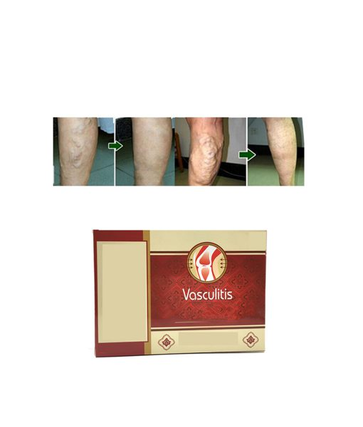 Varicose Veins Herbal Healing Patch(6 Patches)