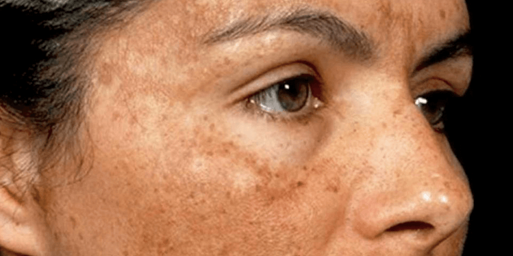5 Facts you should know about Pigmentation!
