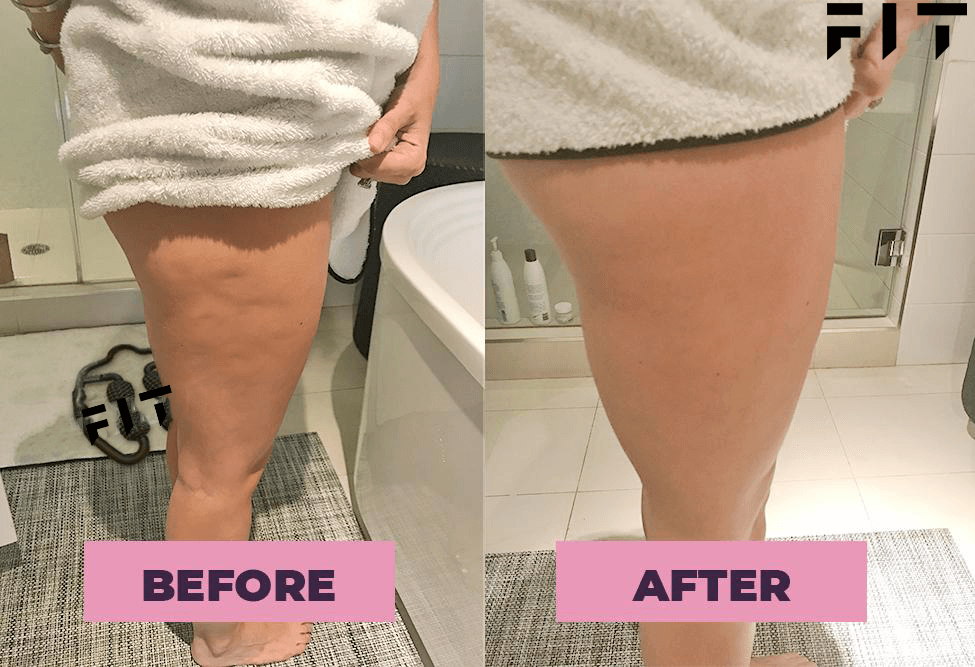 FIT Cellulite Pic