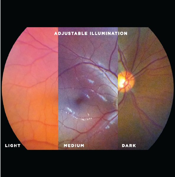 Successfully image patients from all populations, including darker retinas, while maintaining patient comfort with user-adjustable illumination levels. Ideal for accommodating photophobic patients. Capture clear, bright fundus images wherever you are and whoever you are imaging!