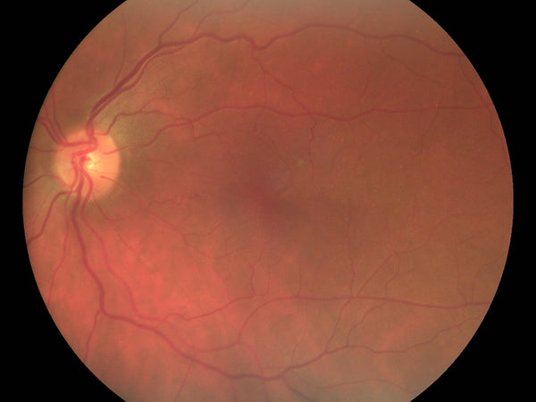 Pictor Plus Fundus Camera Image | Volk