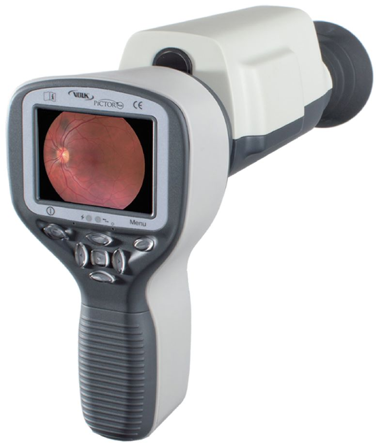 Pictor Plus™ Fundus Camera