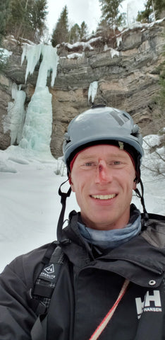 Ambassador Trevor with a cut on his nose, after his ice climb
