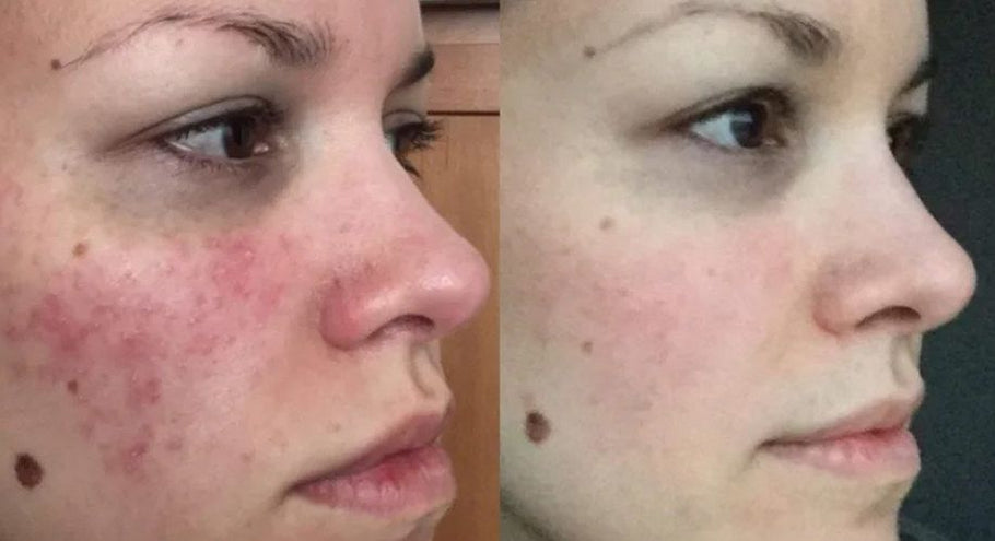 6 Rosacea skin care tips dermatologists give their patients