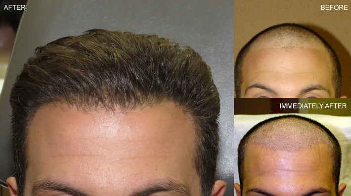Why Choose Non Surgical Hair Restoration?