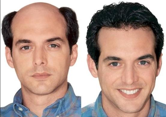 How Do Hair Replacement Systems Work