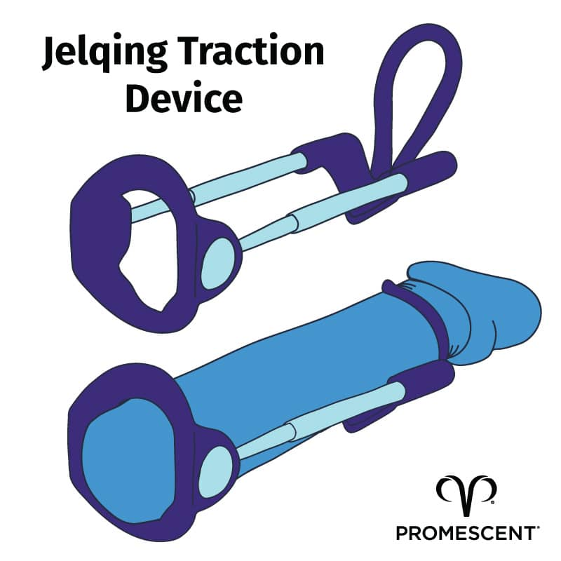 Illustration showing jelqing traction device, both with and without penis inserted into device