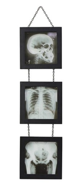 X-Ray Skeleton Wall: 5 x 18 inches