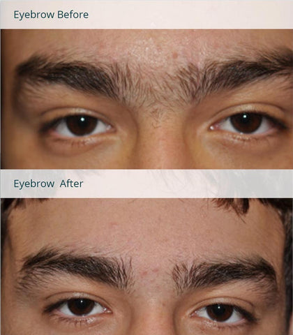 Photofacial Before and After Results