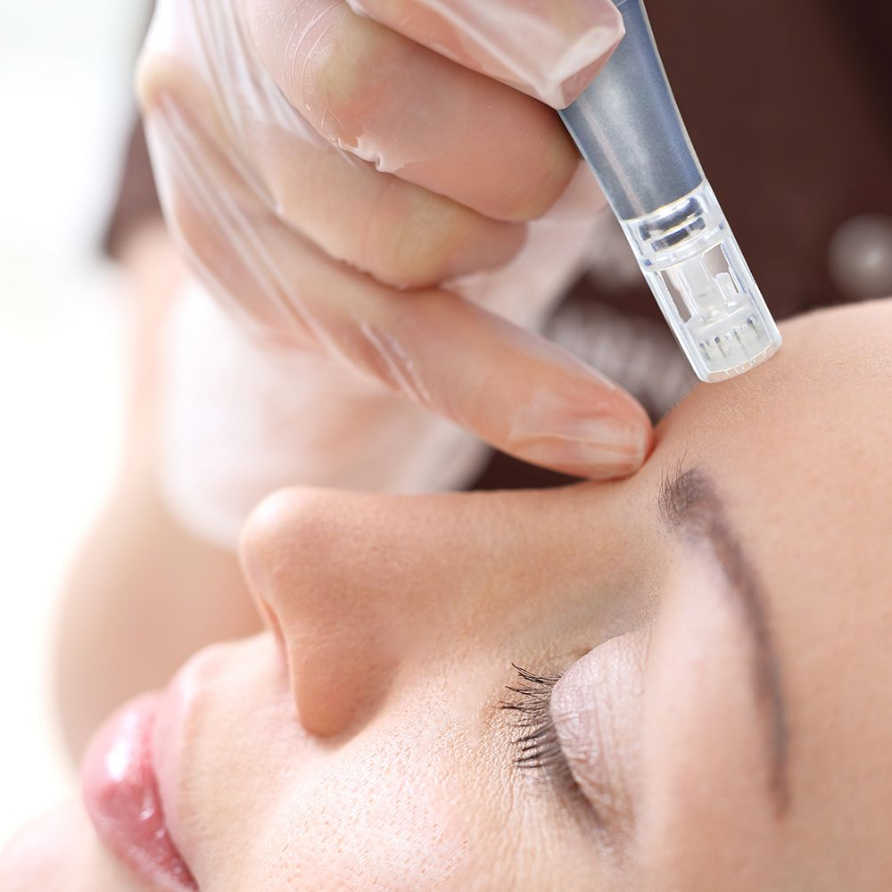 Professional Microneedling & Everything About It