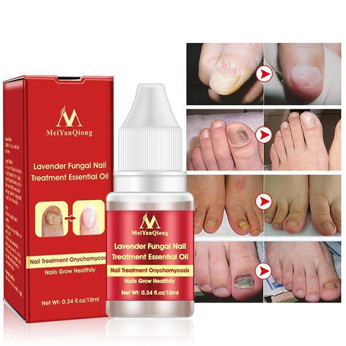 New Chinese Cream Nails Finger Toe Protector Fungus Treatment