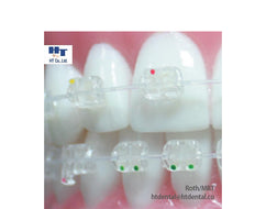 MISO MINI Clear Sapphire Ceramic Orthodontic Brackets 20pcs/Kit