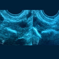 ULTRASONIDO PELVICO O TRANSVAGINAL
