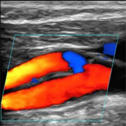 ULTRASONIDO DOPPLER CAROTIDAS