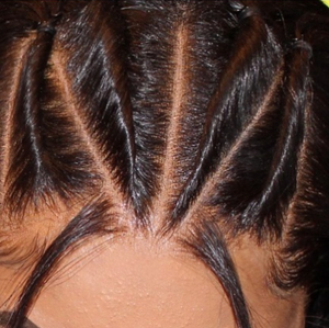 High Definition Frontal