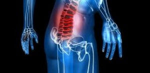 Back pain from heavy deadlifting
