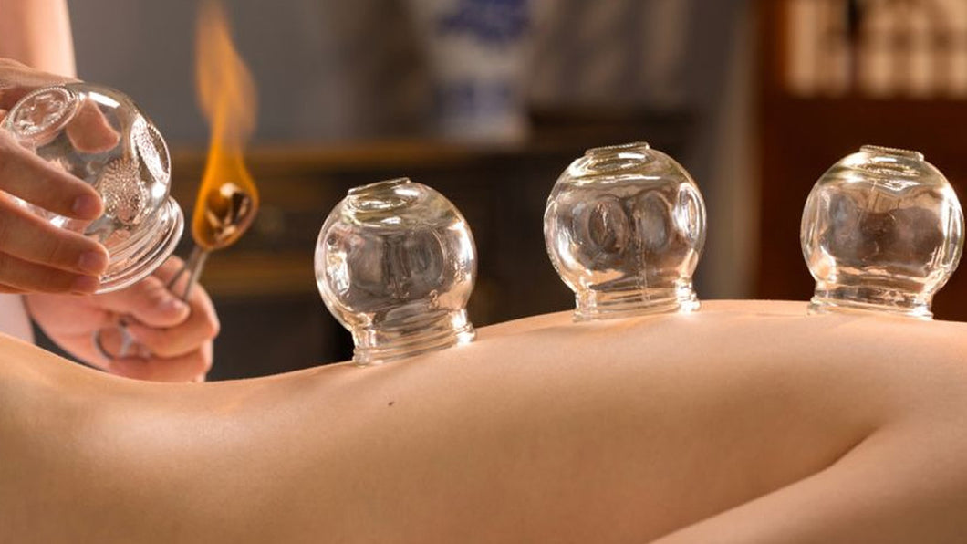 Massage – Cupping