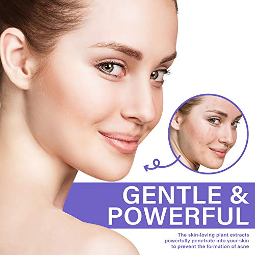 Acne Whitening Cream by St.Mege - Penetrate to Treat Acne from Root, Mois-turizing Spot Treatment