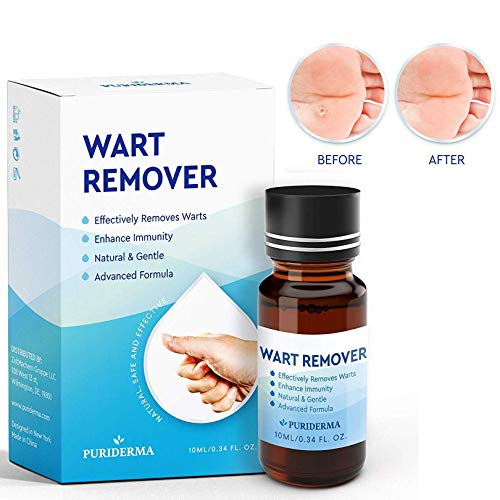 BEALUZ Wart Remover, Maximum Strength Wart Removal Treatment