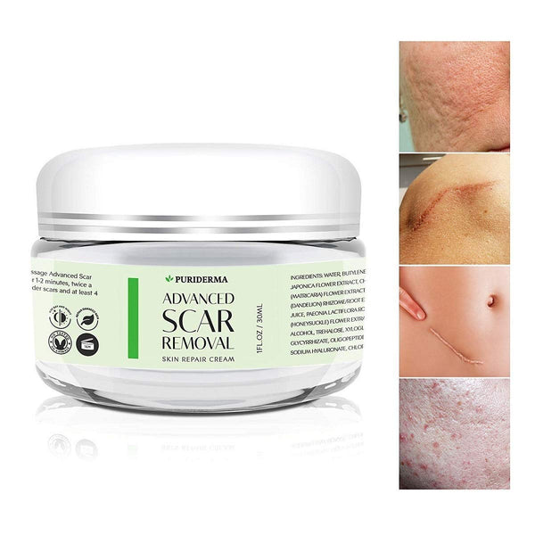 PuriDerma Scar Removal Cream - Advanced Treatment for Face & Body, Old & New Scars