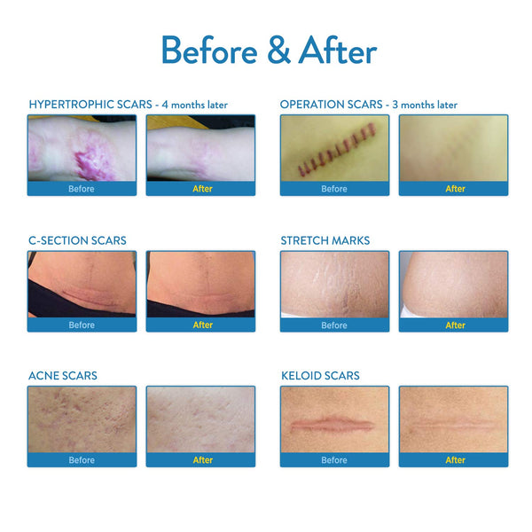 Aroamas, Silicone Scar Removal Sheets for Keloid, C-Section, Hypertrophic, Surgical Scars