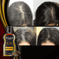 Grey Reverse™ Hair Darkening Shampoo