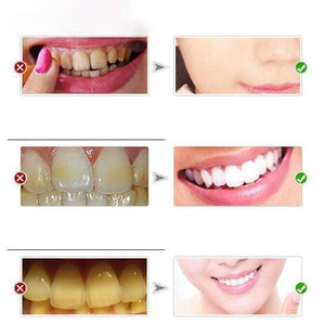 Stain-Free Teeth Whitener Toothpaste