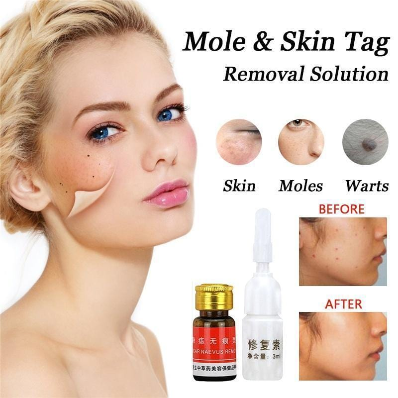 Mole & Skin Tag Removal Solution
