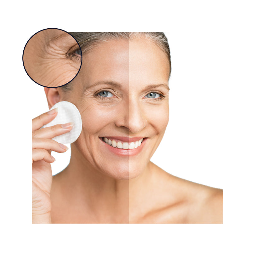 Anti-Aging/ Lost of Firmness