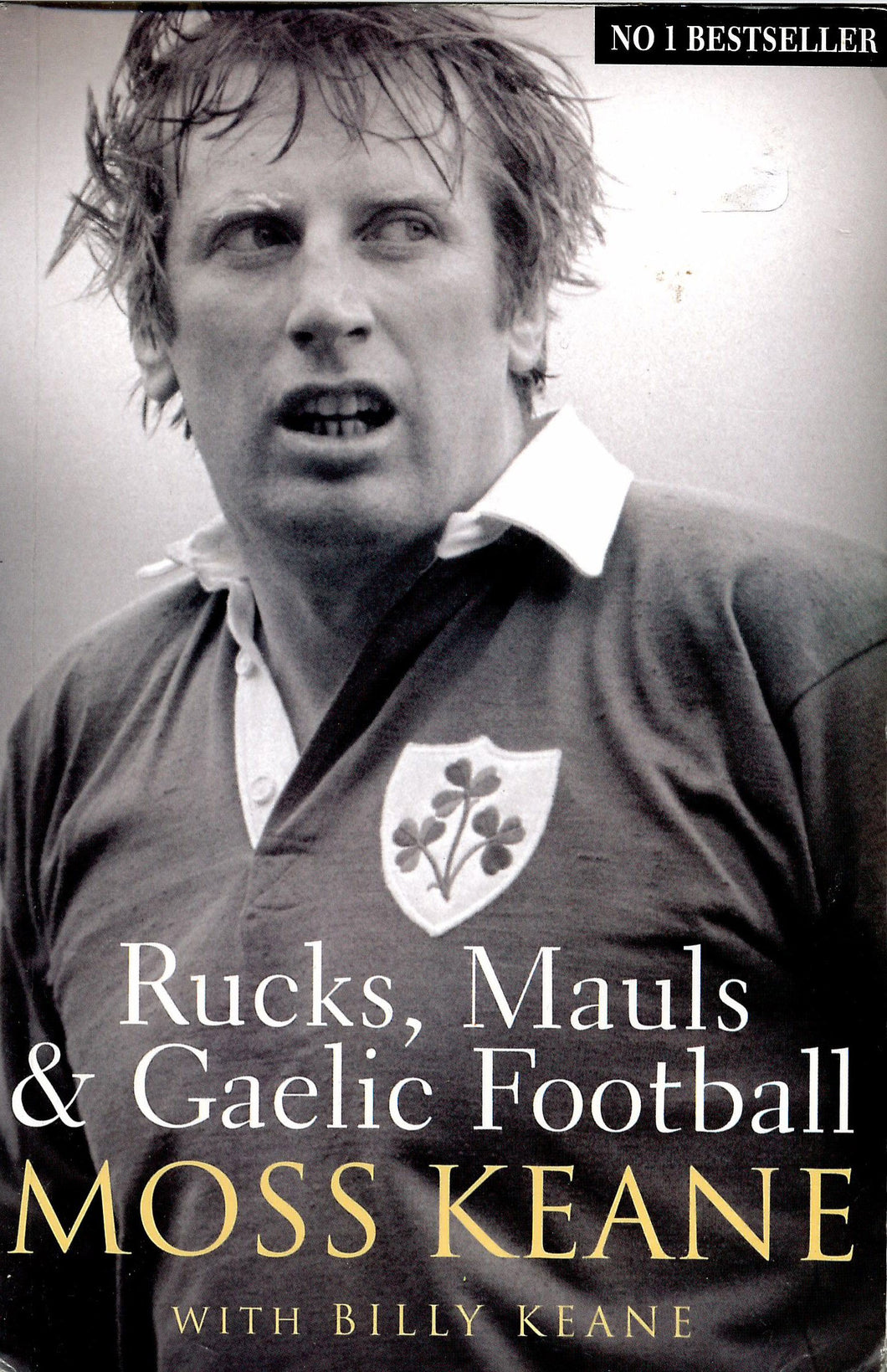 Rucks, Mauls and Gaelic Football