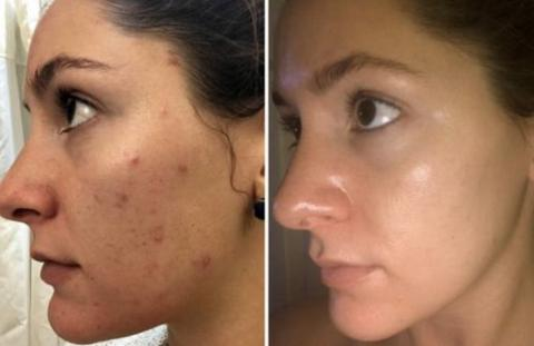 Before & After Derma Glow Spa Professional Light Therapy Mask