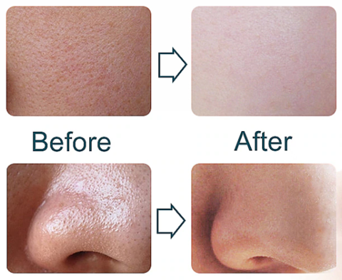 Derma Glow Spa Before & After