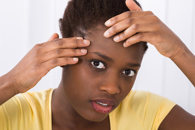 6 Tips to avoid Acne Breakouts on African American skin
