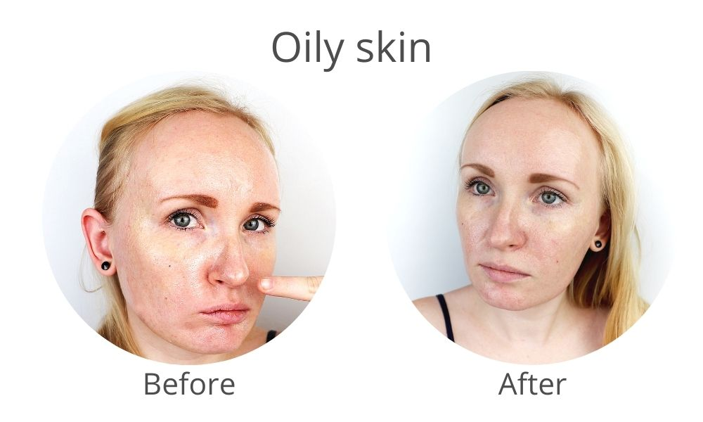 oily skin solution with skinrite