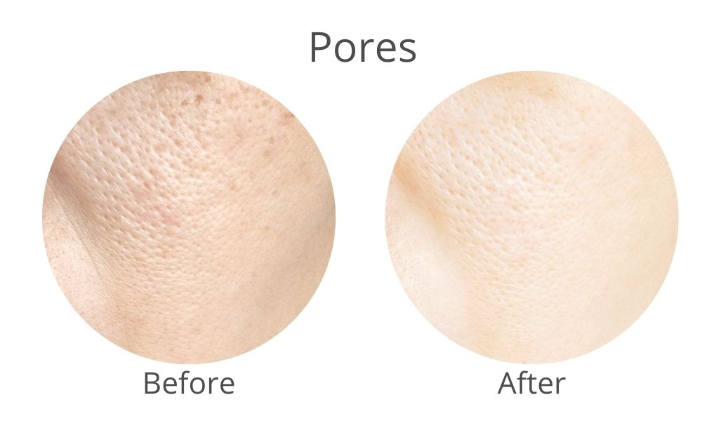 open pores solution with skinrite