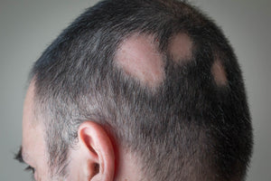 5th DAY - THE MAIN ALOPECIA