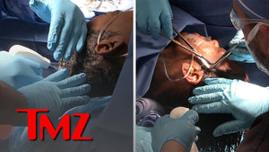 [Full Video] Tessica Brown Gets Gorilla Glue Out of Hair, Video of Surgery