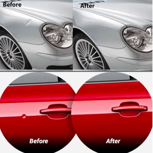CAR DENT REMOVER - Last Day Promotion 🕙