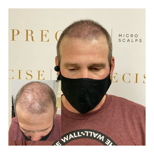 SCALP MICRO PIGMENTATION 3 DAY TRAINING - Exquisite Lash