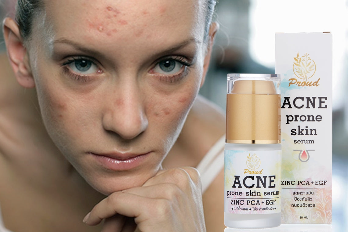 PROUD Acne Prone Skin Serum