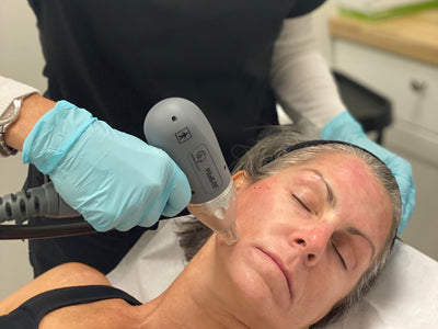 Collagen Induction Therapy - Why You Should Start ASAP