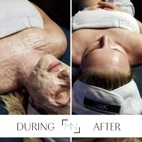 dmk facial during and after