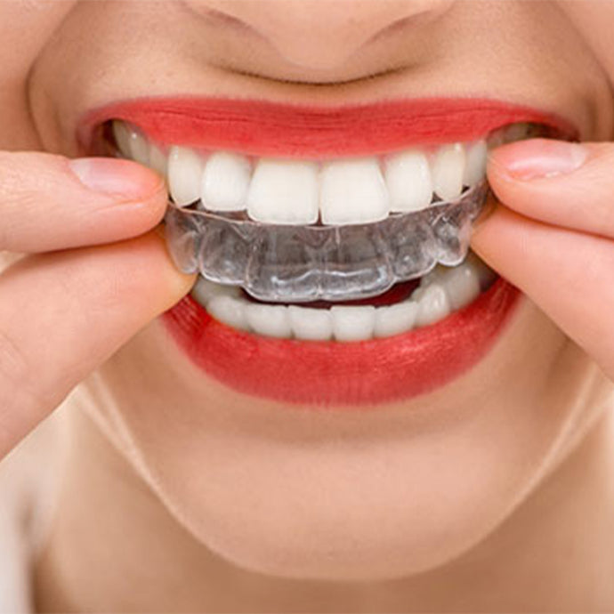 Learn How Invisible Aligners Work
