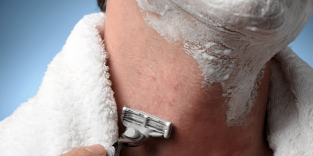 how to treat razor burn men